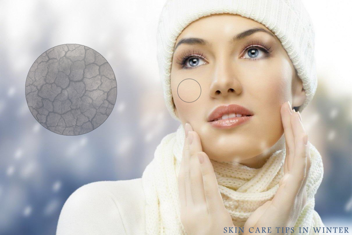 Keeping your Skin Healthy in the Winter